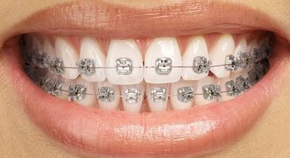 The 5 Most Common Types of Braces