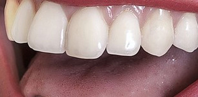 affordable cosmetic dentistry solutions