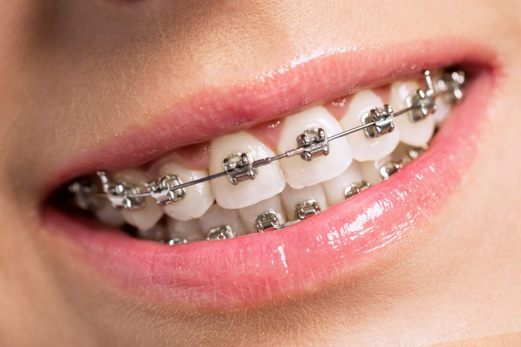 braces is considered cosmetic dentistry by some