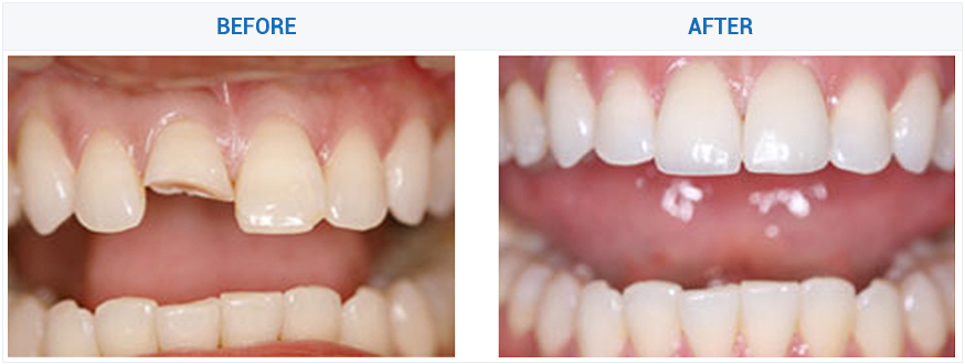 dental crowns tooth repair